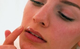 средство от малярии на губах