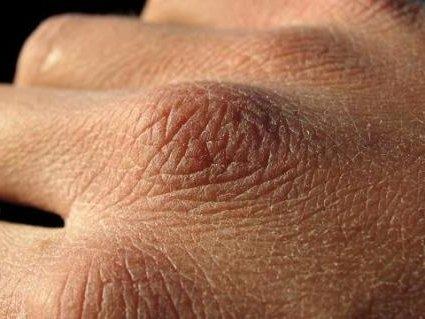 как выглядят цыпки на руках?
