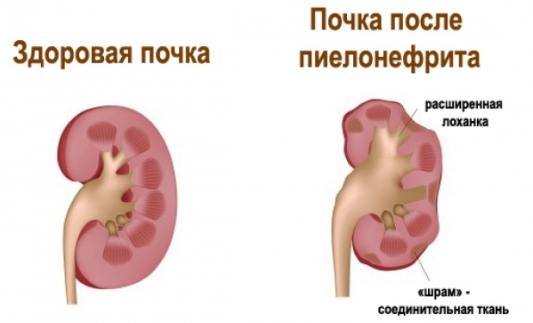 Пиелонефрит последствия при беременности
