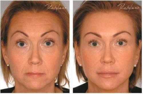 Лицо после гиалуроновой кислоты: фото