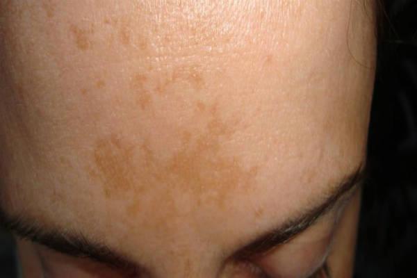 Пятна на теле коричневого цвета что это и как лечить