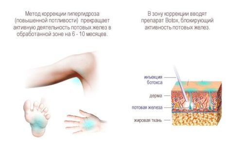 botox-podmishki3