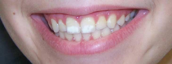 Побелели кончики зуба что это такое