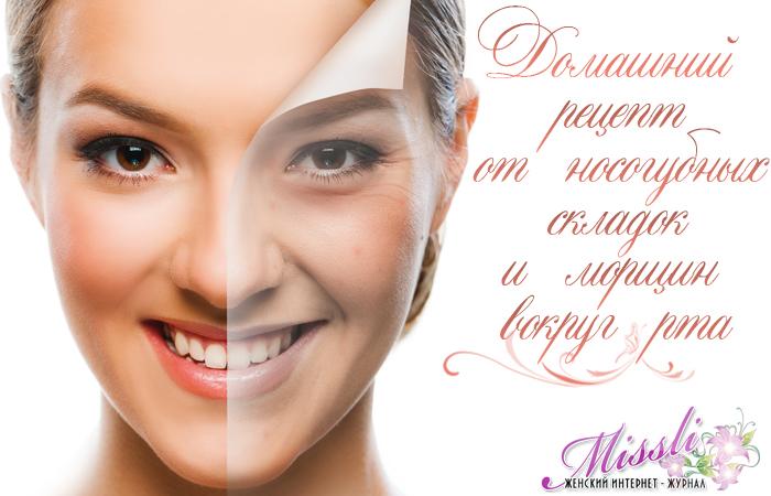 Рецепт от носогубных складок и морщин возле рта — вернет упругость и тонус коже